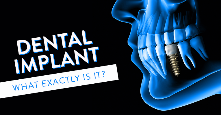 What Exactly is a Dental Implant?