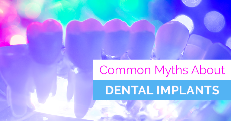 Dental Implant Misconceptions
